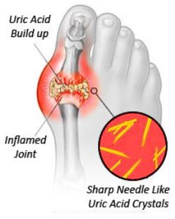 Cara-Cara Untuk Susutkan Sakit Gout Dengan Makanan