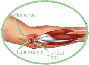 Tennis Elbow-Hand Surgery-Wrist Surgery-Elbow Surgery