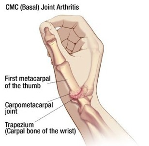 Hand Joint Diagram